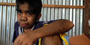 Baiatul nascut cu sindromul varcolacului refuza tratamentul pentru ca este divinizat la el in sat: