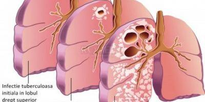 Tuberculoza activa poate fi depistata in cateva ore. In ce consta noua metoda de diagnostic